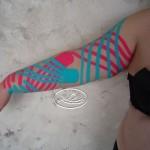 Korekcja limfatyczna – obrzęk kończyny górnej po usunięciu węzłów chłonnych pachowych piersiowych po prawej stronie.